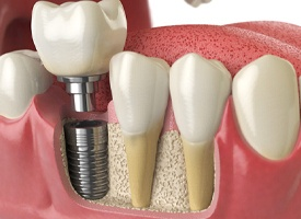 A dental implant in the lower jaw