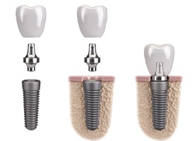 Dental implant, abutment, and crown