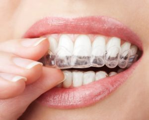 Blue Dot indicators track patient compliance with Invisalign aligners