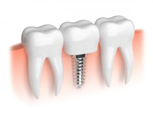 Model of dental implant and crown.