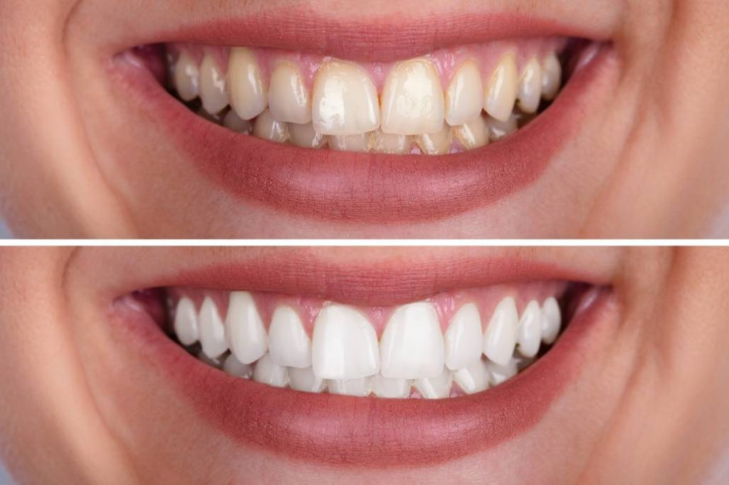 Two photos of before and after teeth whitening