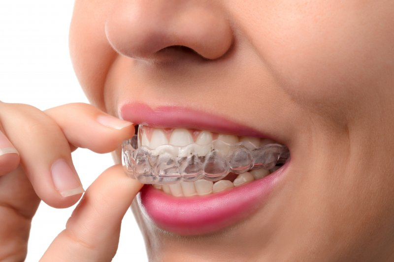 an up-close look at a woman inserting an Invisalign aligner into her mouth